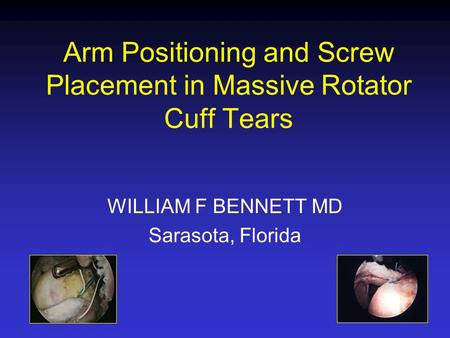 Arm Positioning and Screw Placement in Massive Rotator Cuff Tears WILLIAM F BENNETT MD Sarasota, Florida.