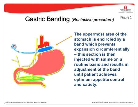 Bariatric Surgical Procedures Adapted from Poirier et al. Bariatric surgery and cardiovascular risk factors: a scientific statement from the American Heart.
