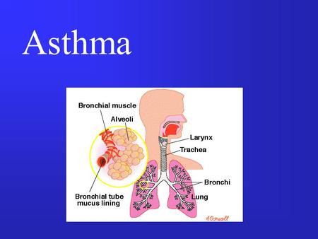 Asthma. Asthma - Characteristics Disease of the respiratory system Due to: –spasm of bronchial smooth muscles, inflammation of bronchial wall, increase.