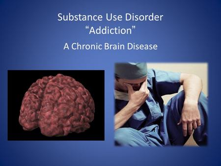Substance Use DisorderAddiction A Chronic Brain Disease.