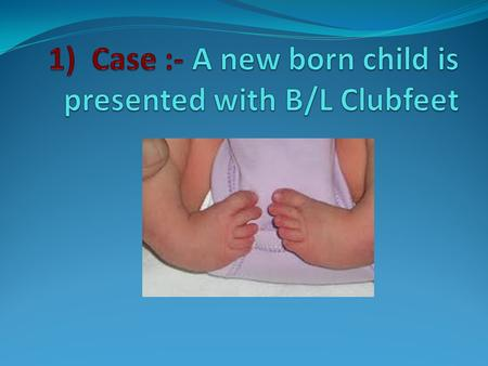 1) Case :- A new born child is presented with B/L Clubfeet