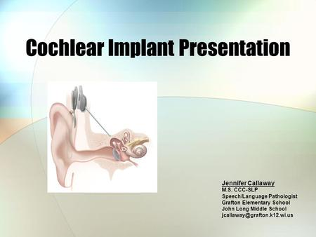Cochlear Implant Presentation Jennifer Callaway M.S. CCC-SLP Speech/Language Pathologist Grafton Elementary School John Long Middle School