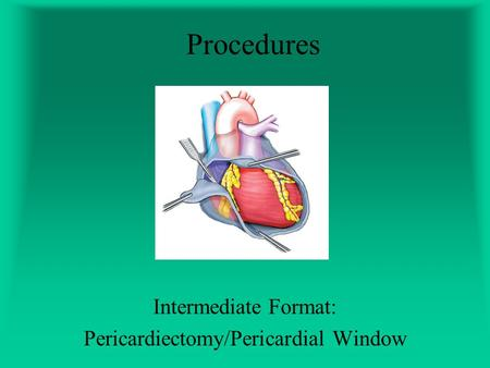 Procedures Intermediate Format: Pericardiectomy/Pericardial Window.