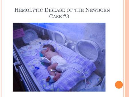 H EMOLYTIC D ISEASE OF THE N EWBORN C ASE #3. S CENARIO Baby Girl Dae Two-day old jaundiced newborn girl Sample of her blood submitted for HDFN workup.