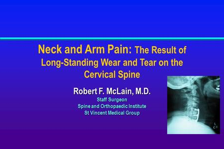 Neck and Arm Pain: The Result of Long-Standing Wear and Tear on the Cervical Spine Robert F. McLain, M.D. Staff Surgeon Spine and Orthopaedic Institute.