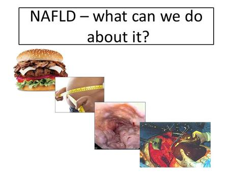 NAFLD – what can we do about it?. Cryptogenic cirrhosis = NASH [O'Leary et al, 2008 Gastro]