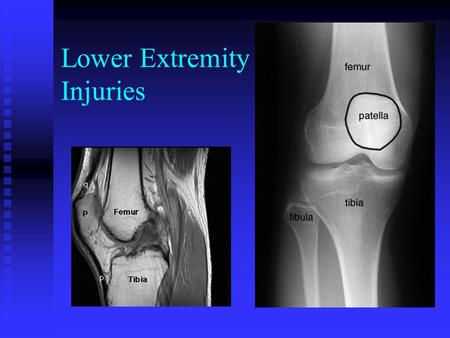 Lower Extremity Injuries. All You Need to Know Asses CSM Asses CSM Immobilize Injury Immobilize Injury Transport Transport.