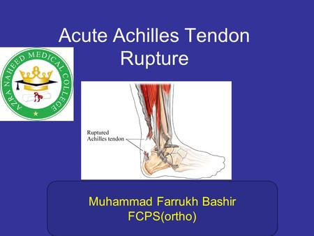 Acute Achilles Tendon Rupture Muhammad Farrukh Bashir FCPS(ortho)