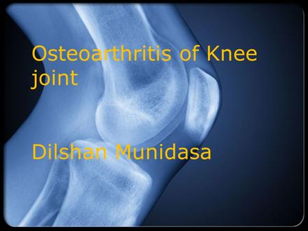 Osteoarthritis of Knee joint Dilshan Munidasa. Overview  Definition and Risk Factors  Idiopathic vs. Secondary OA  Clinical Features  Diagnosis 