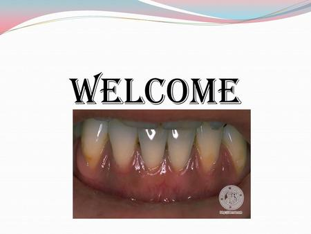 WELCOME. PIGMENTED LESIONS OF ORAL MUCOSA Oral and Perioral pigmentation may be physiologic (or) pathologic in origin. Assume variety of discolorations,