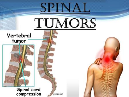 SPINAL TUMORS. GROUP MEMBERS:  Carlwyn Collins  Jennifer Haynes  Satrupa Devi Singh  Vanessa Wickham.
