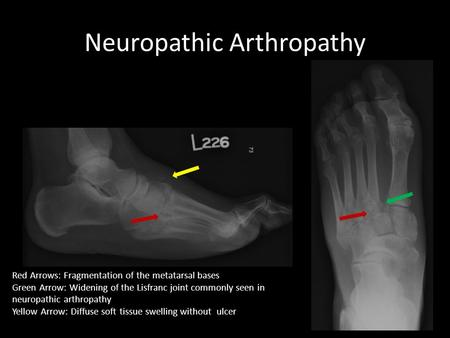 Neuropathic Arthropathy Red Arrows: Fragmentation of the metatarsal bases Green Arrow: Widening of the Lisfranc joint commonly seen in neuropathic arthropathy.