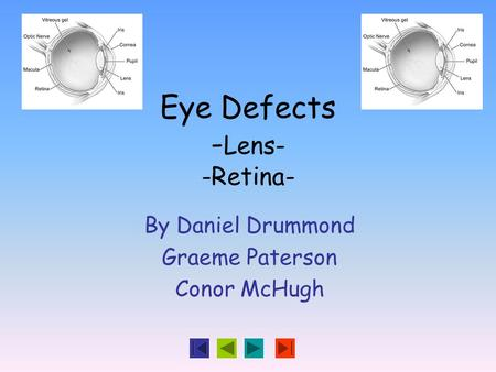 Eye Defects - Lens- -Retina- By Daniel Drummond Graeme Paterson Conor McHugh.