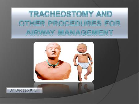 TRACHEOSTOMY AND OTHER PROCEDURES FOR AIRWAY MANAGEMENT