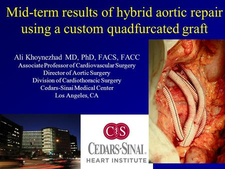 Mid-term results of hybrid aortic repair using a custom quadfurcated graft Ali Khoynezhad MD, PhD, FACS, FACC Associate Professor of Cardiovascular Surgery.