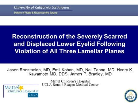 University of California Los Angeles Division of Plastic & Reconstructive Surgery Reconstruction of the Severely Scarred and Displaced Lower Eyelid Following.