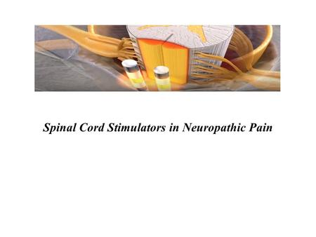Spinal Cord Stimulators in Neuropathic Pain. Introduction Chronic pain is very common Immense physical, psychological, societal impact Financial burden.