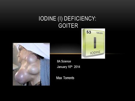 Goiter Max Torrents IODINE (I) DEFICIENCY: GOITER 8A Science January 10 th 2014.