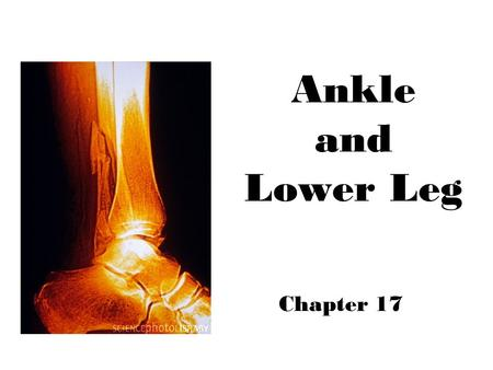 Ankle and Lower Leg Chapter 17. Ankle Bony Anatomy Talus (link between lower leg & foot) Tibia –Medial malleolus Fibula –Lateral malleolus Tibial tuberosity.