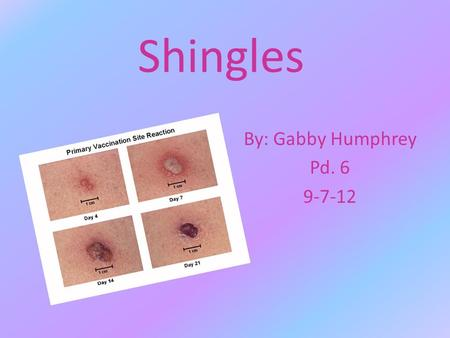 Shingles By: Gabby Humphrey Pd. 6 9-7-12. What is Shingles? Shingles is an adult version of the chicken pox, but more painful. It is a viral infection.