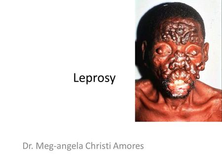 Leprosy Dr. Meg-angela Christi Amores. Leprosy A.k.a. Hansen's Disease nonfatal, chronic infectious disease caused by Mycobacterium leprae clinical manifestations.