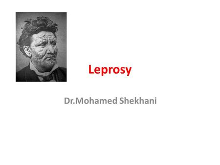 Leprosy Dr.Mohamed Shekhani. Who is at risk?   web/pages/leprosy/images/girl.