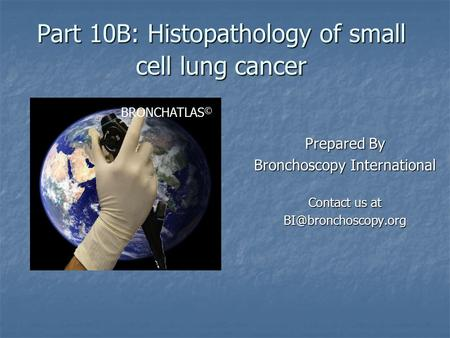 Part 10B: Histopathology of small cell lung cancer Prepared By Bronchoscopy International Contact us at BRONCHATLAS ©