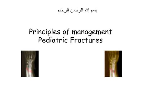 Principles of management Pediatric Fractures بسم الله الرحمن الرحيم.