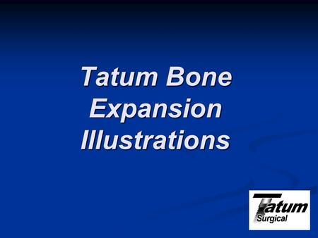 Tatum Bone Expansion Illustrations. Indication for Bone Expansion Bone expansion techniques for dental implant placement were developed by Dr. Hilt Tatum.