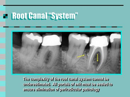 "Root Canal ""System"" The complexity of the root canal system cannot be underestimated. All portals of exit must be sealed to ensure elimination of periradicular."