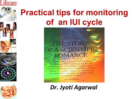 Practical tips for monitoring of an IUI cycle Dr. Jyoti Agarwal.