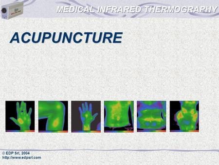 MEDICAL INFRARED THERMOGRAPHY