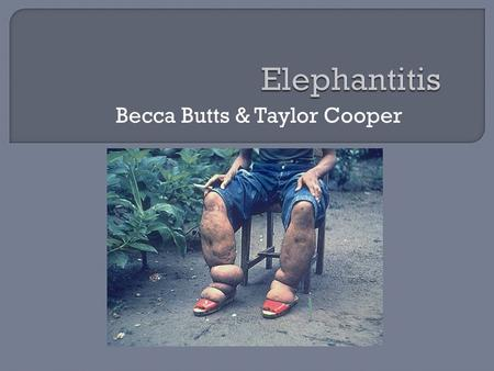 Becca Butts & Taylor Cooper.  A disease that is characterized by the thickening of the skin and underlying tissues, especially in the legs and male genitals.