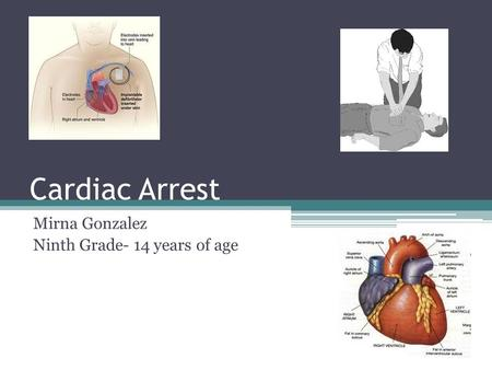 Cardiac Arrest Mirna Gonzalez Ninth Grade- 14 years of age.