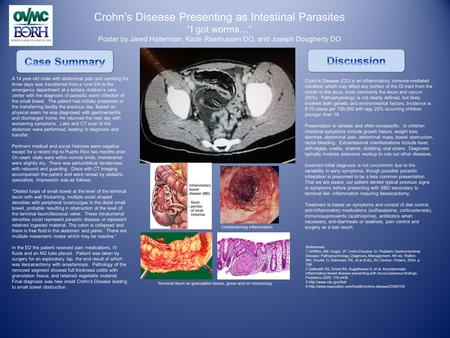 "Crohn's Disease Presenting as Intestinal Parasites ""I got worms…"" Poster by Jared Halterman, Kade Rasmussen DO, and Joseph Dougherty DO A 14 year-old male."