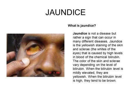 jaundice disease Jaundice jaundice is not a liver disease, but rather a symptom that can occur as a result of a variety of diseases.