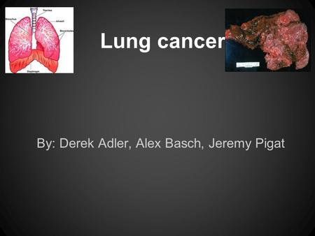 Lung cancer By: Derek Adler, Alex Basch, Jeremy Pigat.