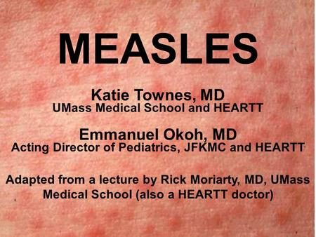 MEASLES Katie Townes, MD UMass Medical School and HEARTT Emmanuel Okoh, MD Acting Director of Pediatrics, JFKMC and HEARTT Adapted from a lecture by Rick.
