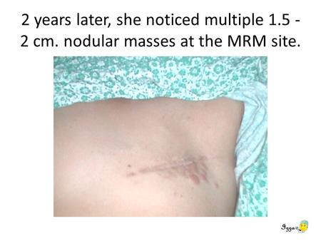 2 years later, she noticed multiple 1.5 - 2 cm. nodular masses at the MRM site.