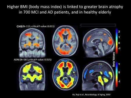 Higher BMI (body mass index) is linked to greater brain atrophy in 700 MCI and AD patients, and in healthy elderly ADNI (N=587,critical P-value: 0.025)