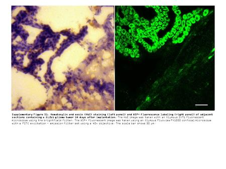 Supplementary Figure S1. Hematoxylin and eosin (H&E) staining (left panel) and ASP+ fluorescence labeling (right panel) of adjacent sections containing.