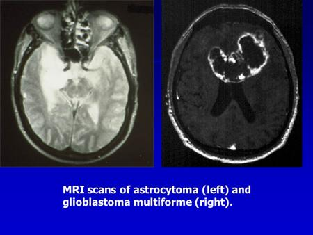 MRI scans of astrocytoma (left) and glioblastoma multiforme (right).
