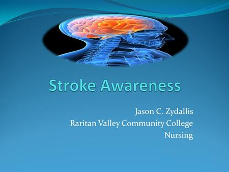 Jason C. Zydallis Raritan Valley Community College Nursing.