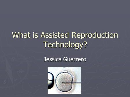 What is Assisted Reproduction Technology? Jessica Guerrero.