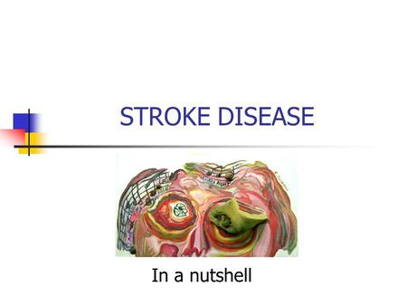 STROKE DISEASE In a nutshell. The Prevention and Management of Stroke by Dr Irfan Shakir.