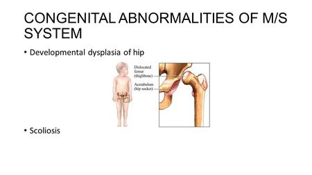 CONGENITAL ABNORMALITIES OF M/S SYSTEM Developmental dysplasia of hip Scoliosis.