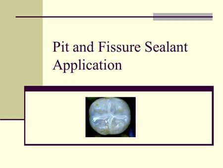 Pit and Fissure Sealant Application. Rules / Regulations Must be EFDA Expanded Function Dental Assistant. Certified by: DANB Dental Assisting National.