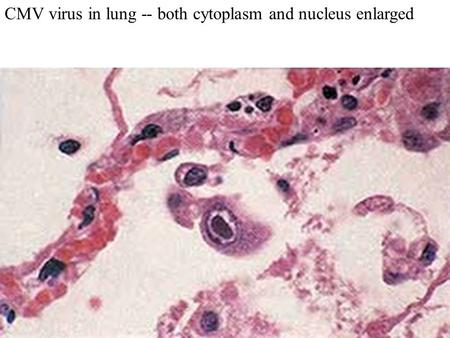 CMV virus in lung -- both cytoplasm and nucleus enlarged.