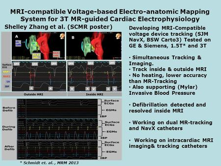 MRI-compatible Voltage-based Electro-anatomic Mapping System for 3T MR-guided Cardiac Electrophysiology Shelley Zhang et al. (SCMR poster) Developing MRI-Compatible.