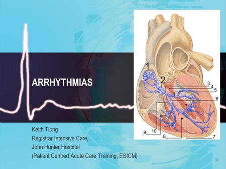 1 ARRHYTHMIAS Keith Tiong Registrar Intensive Care, John Hunter Hospital (Patient Centred Acute Care Training, ESICM)